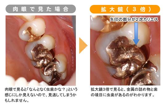 拡大鏡で見た虫歯