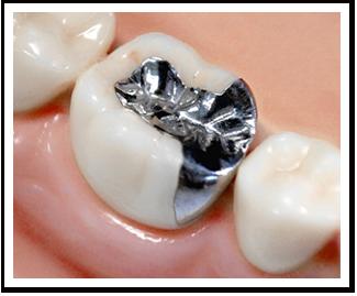 保険治療(銀歯)の場合